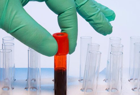Blood test tube samples that are used to test fro vitamin D deficiency.