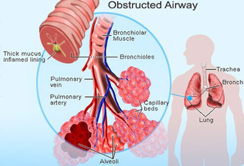 Effects of smoking on respiratory system
