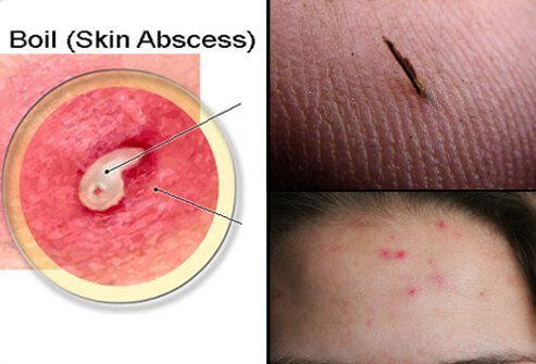 Boils Causes Symptoms And Home Remedies