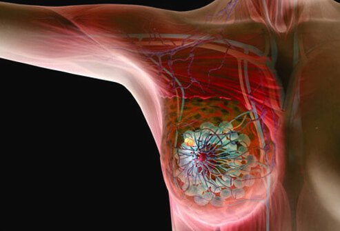 Illustration of breast cancer.