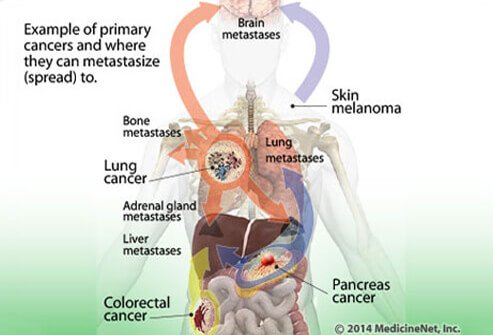 brain cancer how does spread Brain cancer facts  tumor grades and types  cancer cells may break away from malignant brain tumors and spread to other parts of the brain or to the spinal cord.