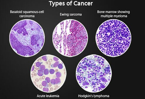 understanding cancer metastasis stages of cancer and more