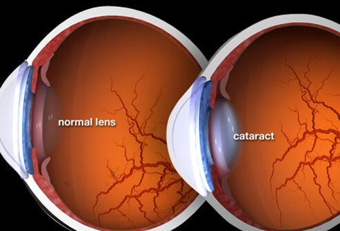 how to get rid of floaters after cataract surgery