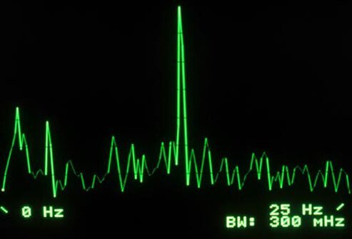 Biofeedback can teach you how to relax your muscles, ease tension, and reduce pain.