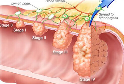colon cancer: symptoms, signs, screening, stages, Human Body