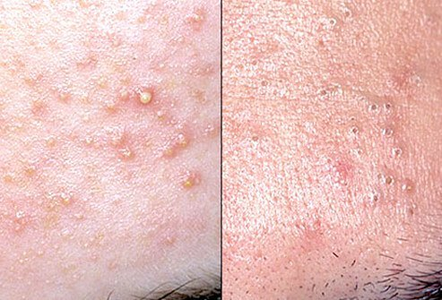 rosacea, acne, shingles: common adult skin diseases, Skeleton