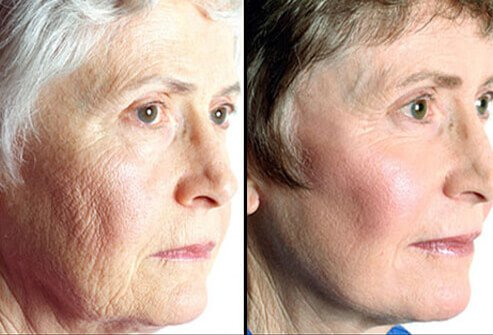 Cosmetic Surgery Before And After Photos Of Cosmetic. Rapid Software Prototyping Set Up A Roth Ira. Software Engineering Training Courses. Photography To Buy Online Petoskey Mi College. The Alarm Company Jackson Ms. Florida Housing Finance Corporation. Painting Companies Raleigh Nc. Chemical Engineering Rutgers. American Recovery Services Online Cfi Renewal