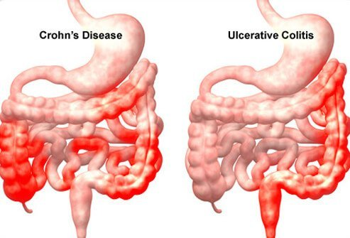 What are symptoms of Crohn's disease?