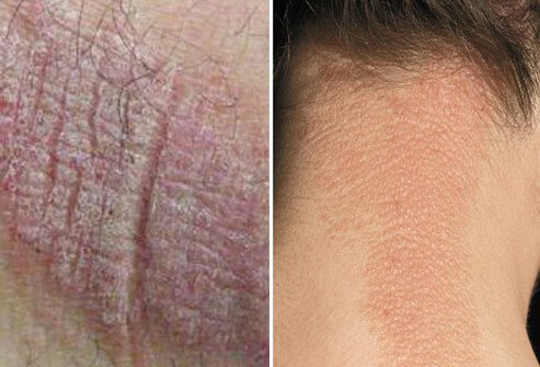 Eczema Atopic Dermatitis Causes Symptoms Treatment