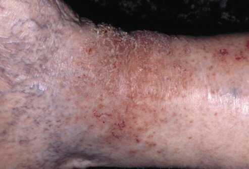 eczema (atopic dermatitis) causes, symptoms, treatment, Skeleton
