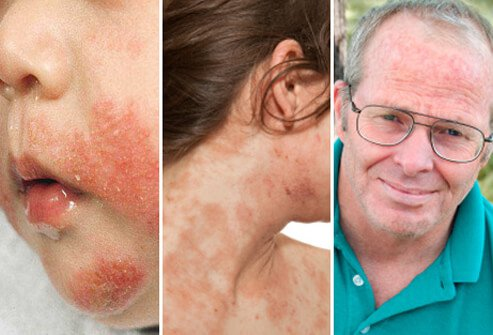 where does eczema appear on the body