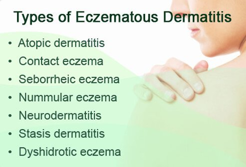 where can eczema appear on the body
