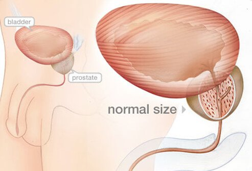 enlarged prostate bph symptoms diagnosis treatment : diagram of prostate - findchart.co