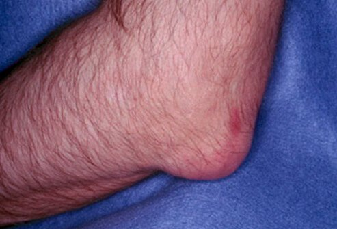 uric acid levels during gout flare what is uric acid in blood gout natural cures