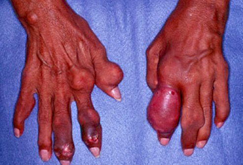 gout medication at walgreens dr berrys gout therapy oil normal uric acid levels during gout attack