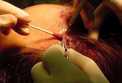 A patient undergoes a hair-replacement procedure in which micrografts are placed in slits made at an angle along the frontal hairline.
