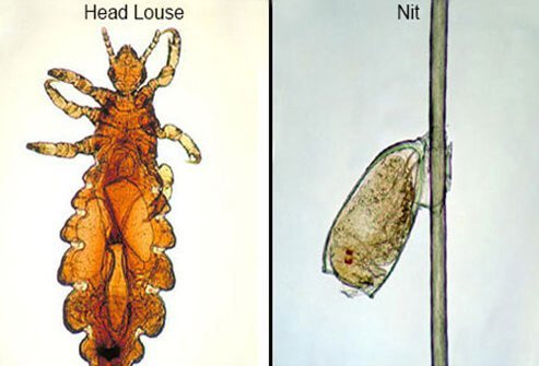 Watch Hair-Related Diseases and Treatment video