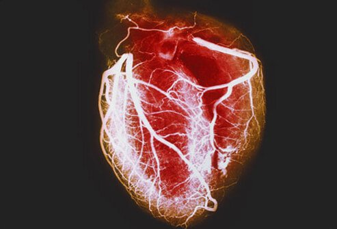 heart disease: causes of a heart attack, Human Body