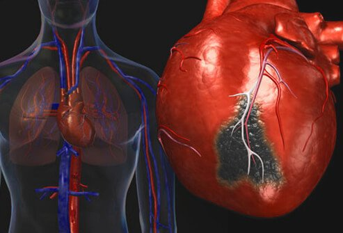 heart disease: causes of a heart attack, Skeleton