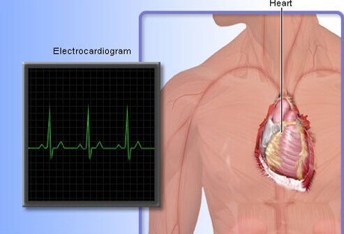 Doctors use a variety of tests to detect heart disease. One common test is the electrocardiogram (ECG or EKG).