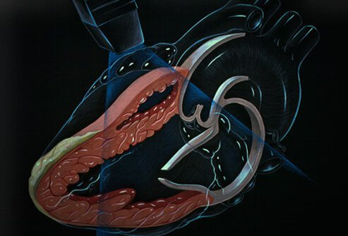 Another test option is echocardiography, which uses sound waves to generate images of the heart.