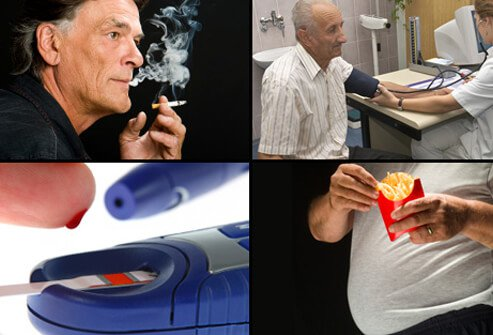 Some of the risk factors for heart disease include smoking, high blood pressure, high cholesterol, diabetes, and obesity.