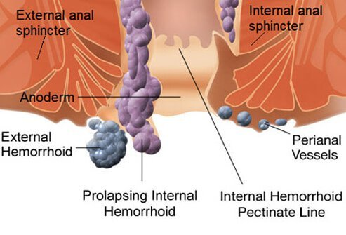 how to get rid of hemorrhoids: causes and treatments, Human Body