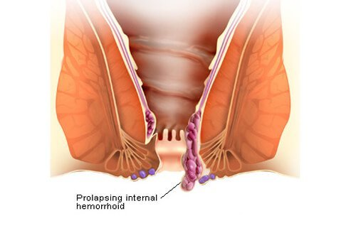 how to get rid of hemorrhoids: causes and treatments, Cephalic Vein