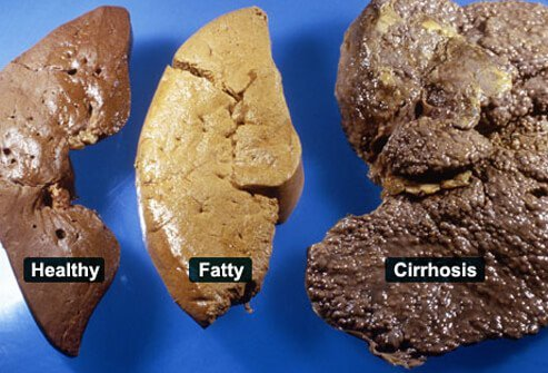 Photo shows healthy, fatty, and cirrhosis livers.