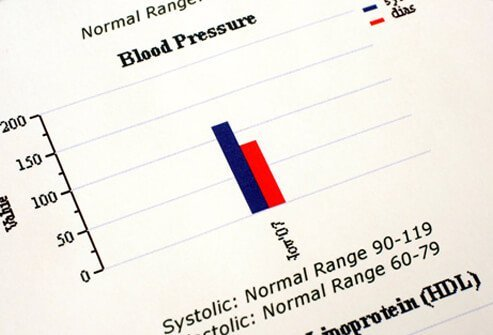low blood pressure (hypotension): symptoms, signs, causes, Skeleton