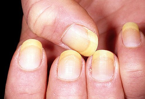 nail color and texture what nails say about your health