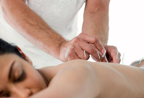 A woman getting acupuncture treatment.