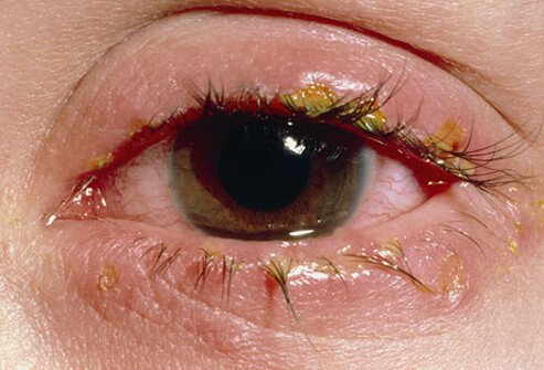 Pink Eye Conjunctivitis Symptoms Causes Treatments