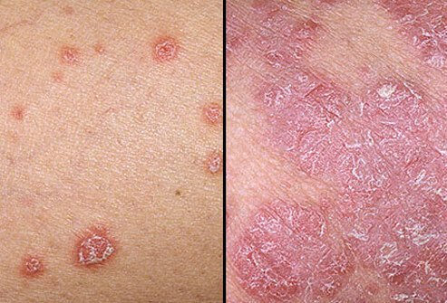 Doctor insights on: Red Round Scaly Patch On Skin - HealthTap