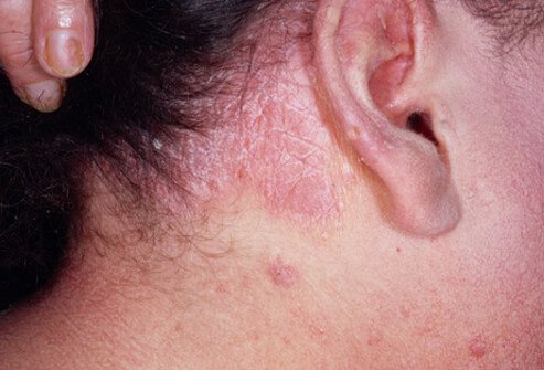signs of psoriasis on scalp