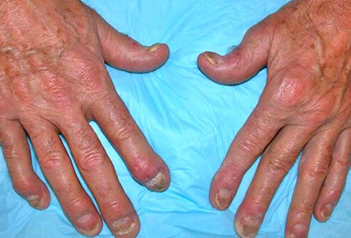 Psoriasis Types, Images, Treatments
