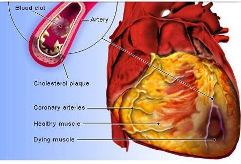 Causes and Risks of Heart Disease