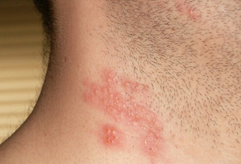 Shingles – Symptoms, Treatment, Pictures and Vaccine ...