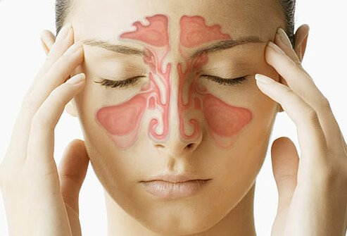 sinus infection (sinusitis) symptoms & treatment, Skeleton