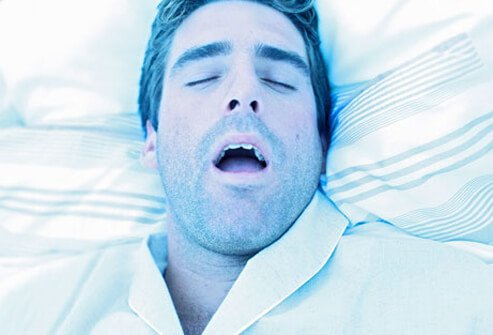 A man in bed with sleep apnea.