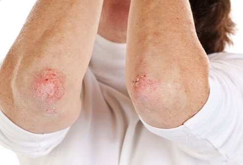 Woman with psoriasis on her elbows.