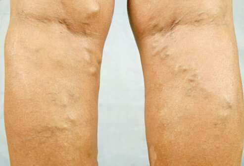 Spider Amp Varicose Veins Causes Before And After