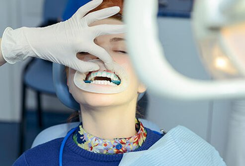 how to get your teeth whitened at the dentist