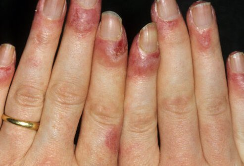 Nail Problems and Injuries-Topic Overview - WebMD