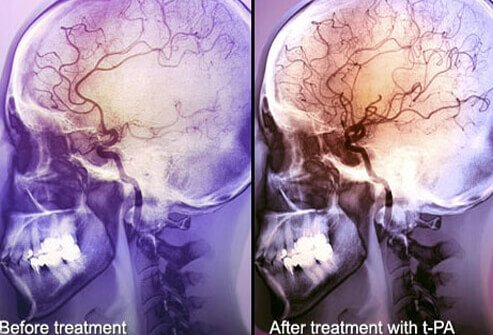 Angiogram of a stroke patient treated with t-PA.
