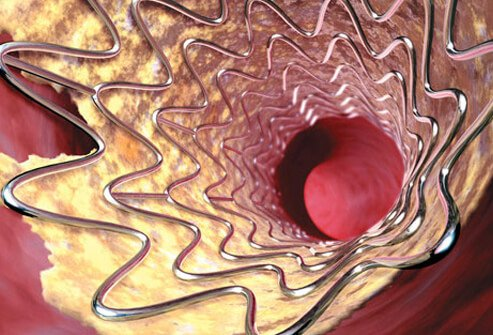 Photo of angioplasty balloon and stent for stroke prevention.