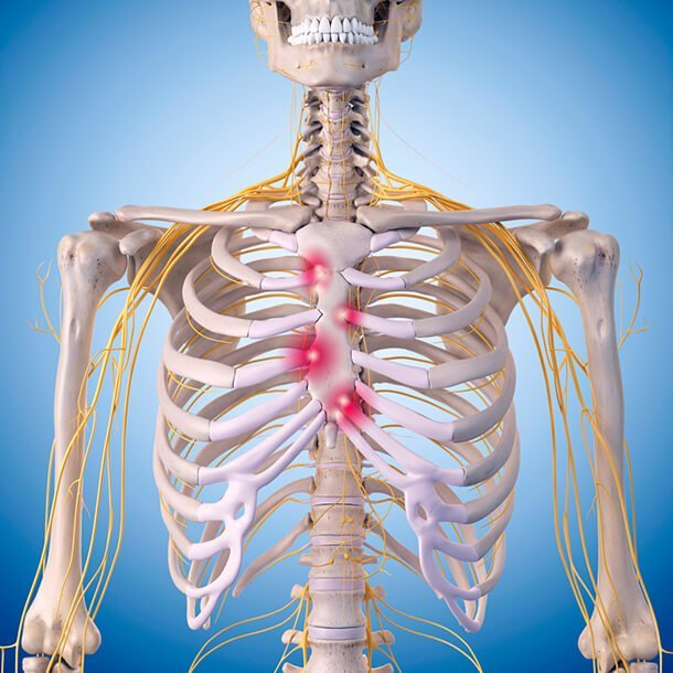 costochondritis: symptoms, causes, and treatment, Skeleton