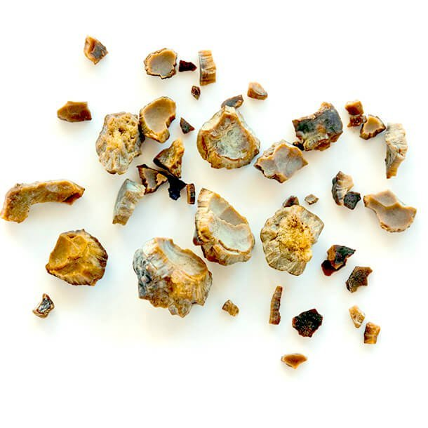 kidney stones: symptoms, causes, and treatment, Human Body