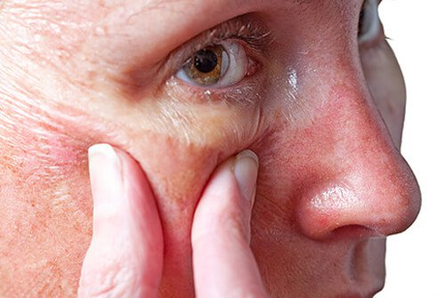 A woman examines her skin after a chemical peel.