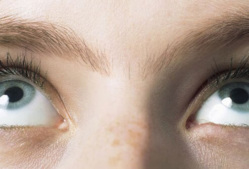 It's no secret that some gals grow excess hair between the eyebrows.
